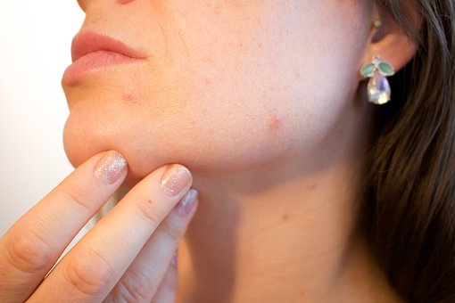 What to know before getting scar treatment in Lahore
