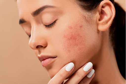 scar treatment in Lahore